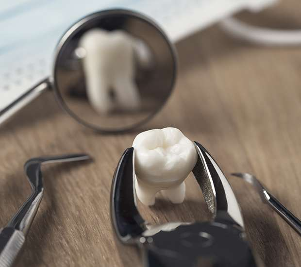 Pasadena When Is a Tooth Extraction Necessary